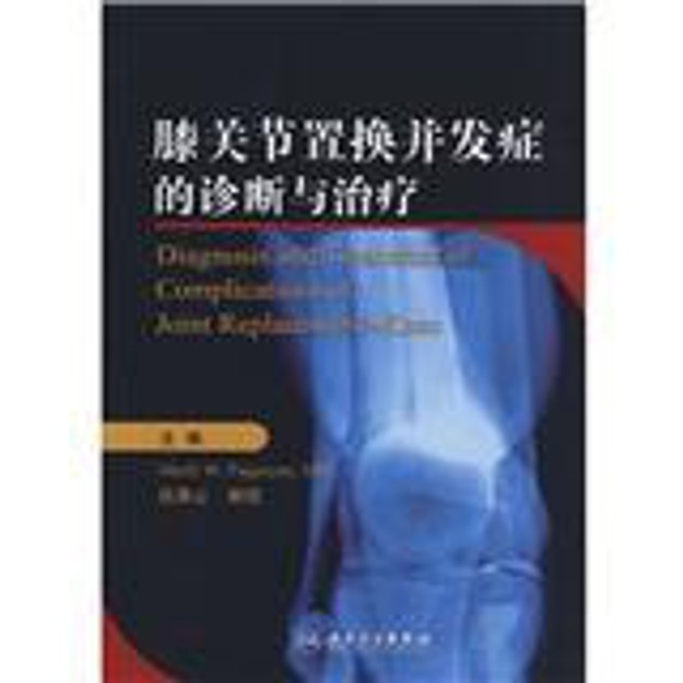 商品详情 - 膝关节置换并发症的诊断与治疗 - image  0