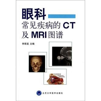 眼科常见疾病的CT及MRI图谱