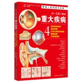 你一定要了解的重大疾病4:运动系统疾病、皮肤疾病、女性生殖系统疾病、眼睛疾病、耳鼻喉疾病