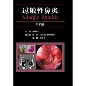 过敏性鼻炎(第2版)