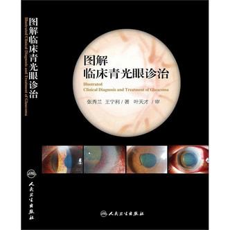 图解临床青光眼诊治